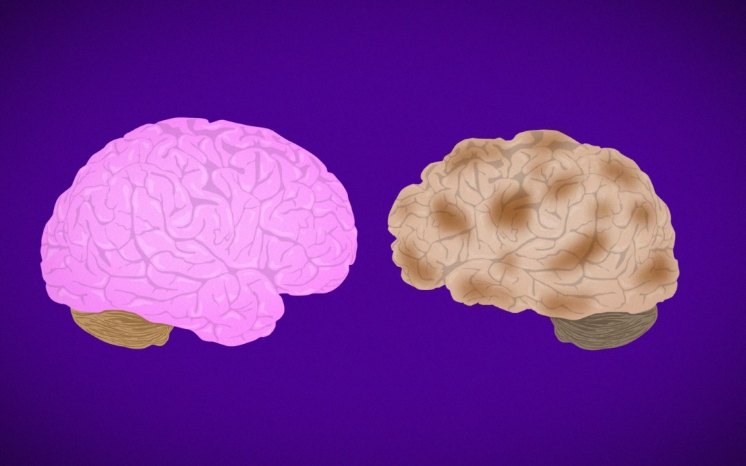 Understanding the Alzheimer's Brain